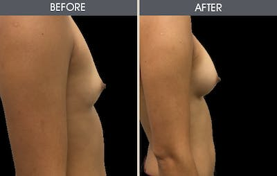 Breast Augmentation Gallery - Patient 2207154 - Image 2