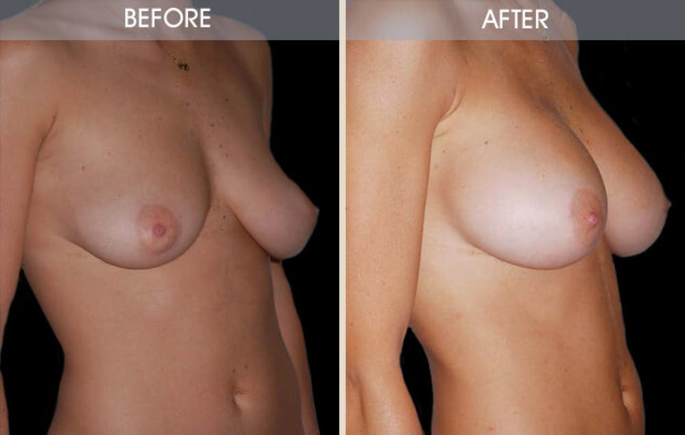 Breast Augmentation Gallery - Patient 2207156 - Image 2