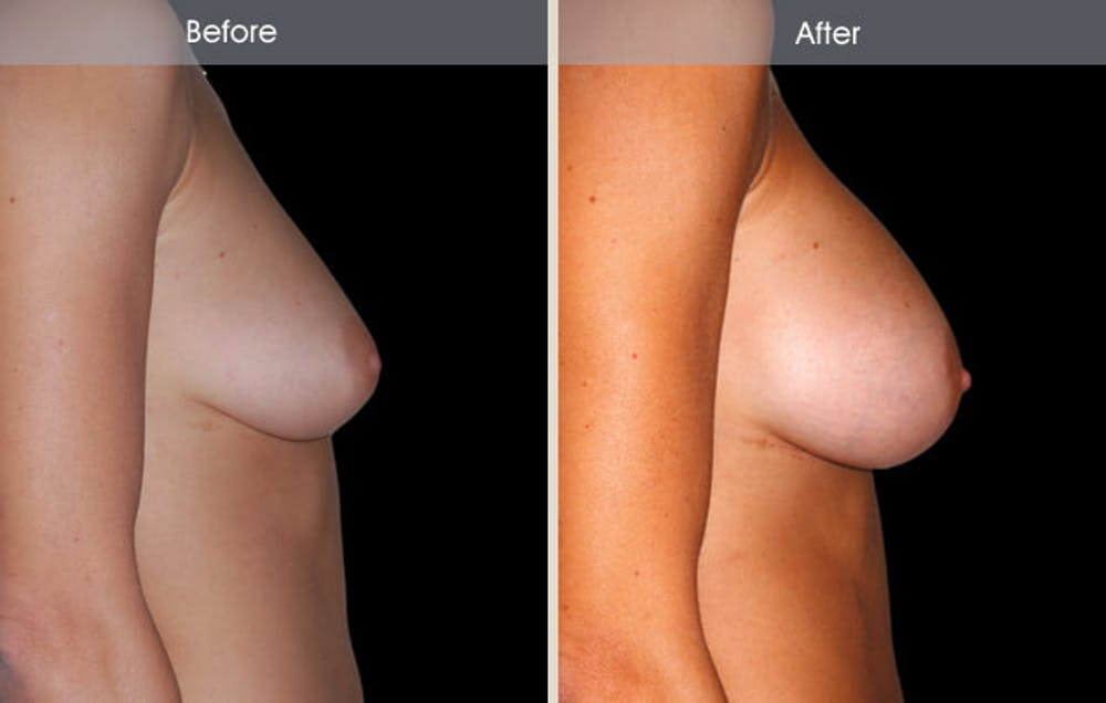 Breast Augmentation Gallery - Patient 2207156 - Image 3