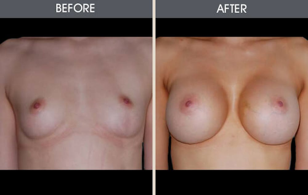 Breast Augmentation Gallery - Patient 2207157 - Image 2