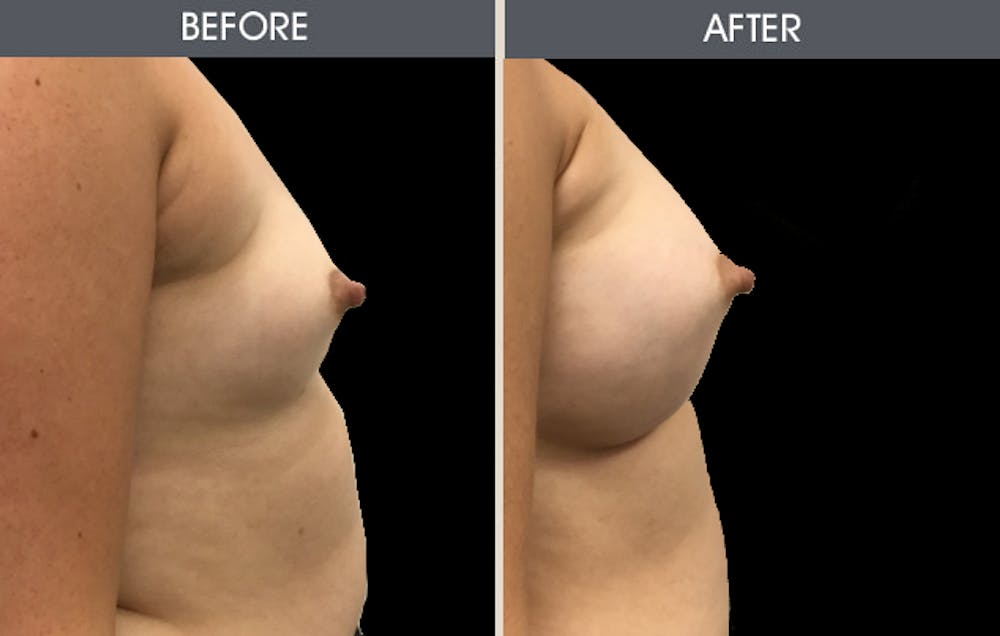 Breast Augmentation Gallery - Patient 2207162 - Image 2