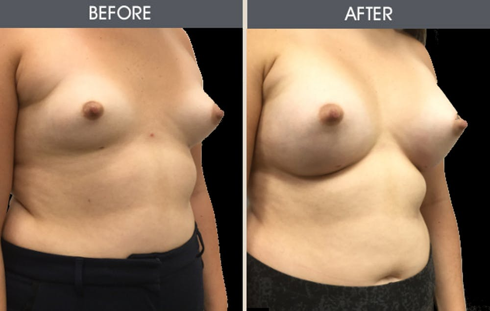 Breast Augmentation Gallery - Patient 2207162 - Image 3