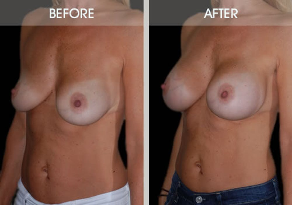 Breast Augmentation Gallery - Patient 2207164 - Image 2
