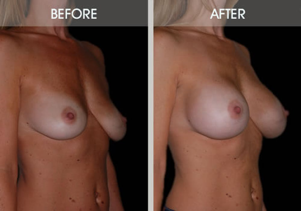 Breast Augmentation Gallery - Patient 2207164 - Image 3