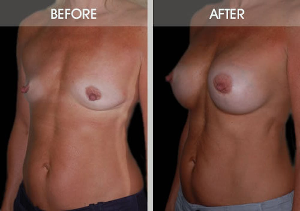 Breast Augmentation Gallery - Patient 2207165 - Image 2