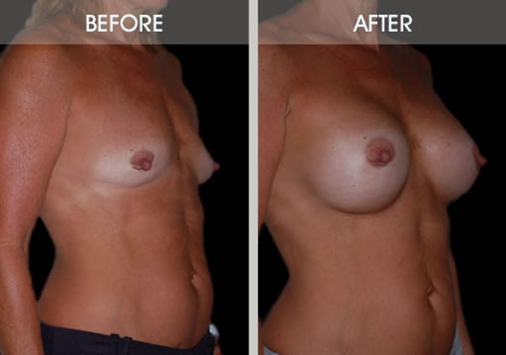 Breast Augmentation Gallery - Patient 2207165 - Image 3