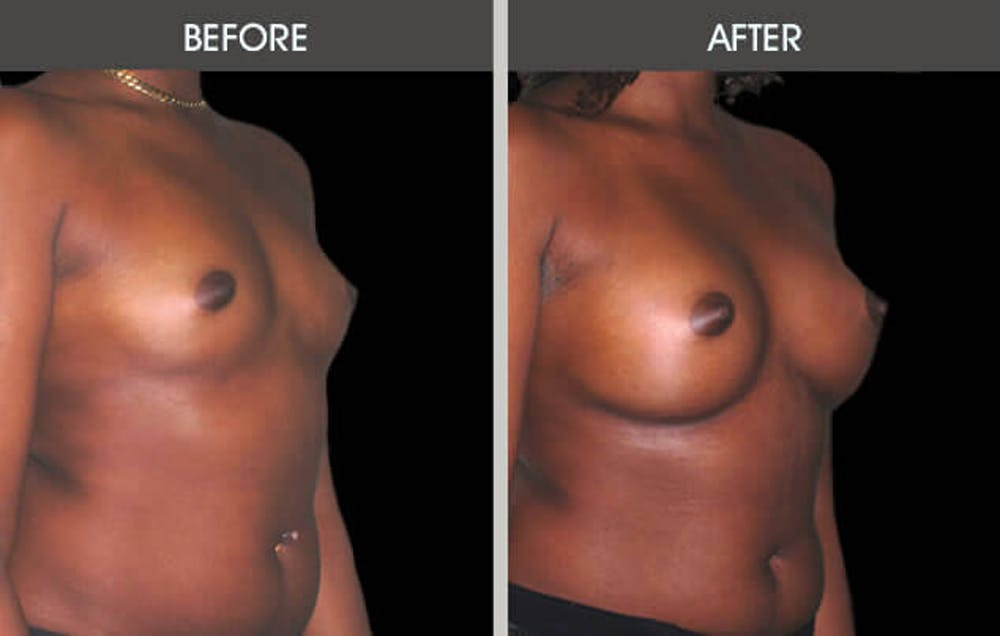 Breast Augmentation Gallery - Patient 2207167 - Image 2