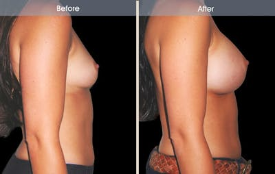 Breast Augmentation Gallery - Patient 2207174 - Image 2