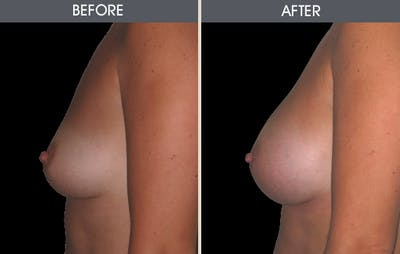 Breast Augmentation Gallery - Patient 2207177 - Image 2