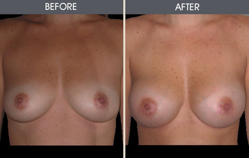 Breast Augmentation Gallery - Patient 2207177 - Image 3