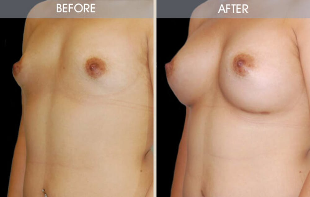 Breast Augmentation Gallery - Patient 2207180 - Image 2