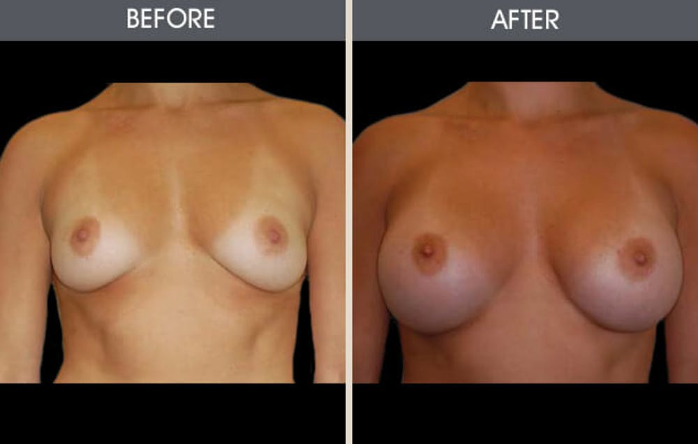 Breast Augmentation Gallery - Patient 2207181 - Image 2