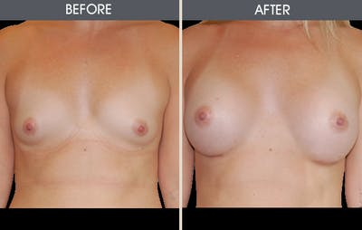 Breast Augmentation Gallery - Patient 2207184 - Image 2