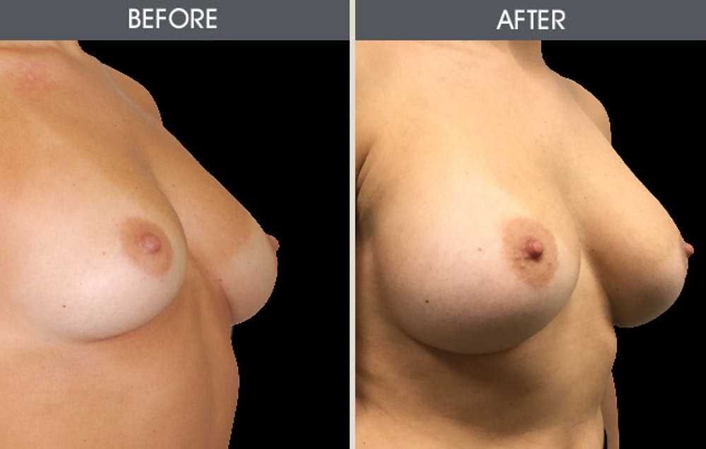 Breast Augmentation Gallery - Patient 2207207 - Image 2
