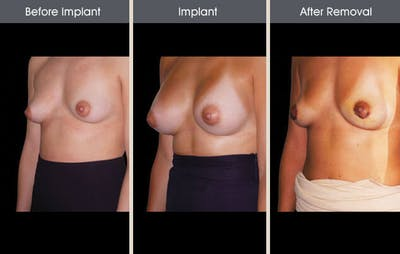 Breast Implant Removal Gallery - Patient 2207173 - Image 2