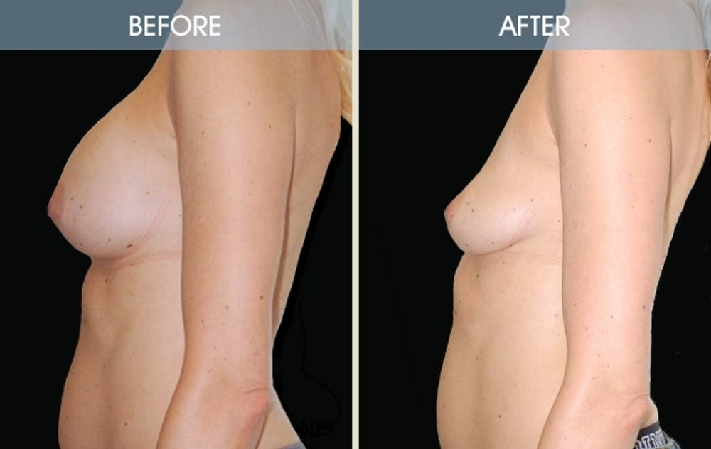 Breast Implant Removal Gallery - Patient 2207176 - Image 2