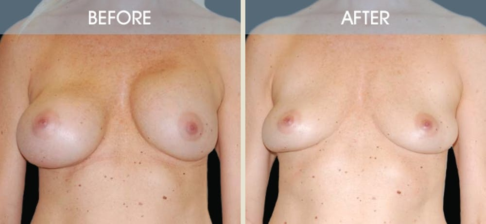 Breast Implant Removal Gallery - Patient 2207176 - Image 3