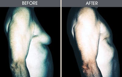 Male Breast Reduction Gallery - Patient 2207216 - Image 2