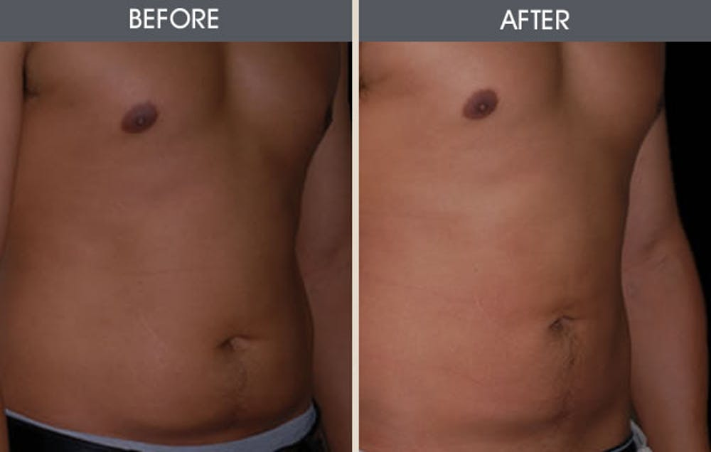 Liposuction Gallery - Patient 2207212 - Image 2
