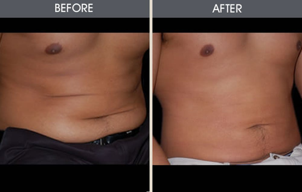 Liposuction Gallery - Patient 2207212 - Image 3