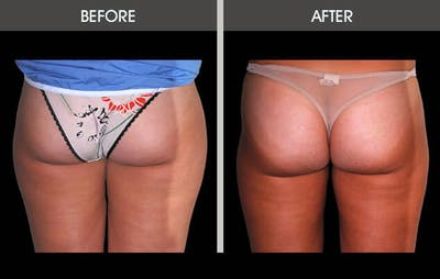 Liposuction Gallery - Patient 2207222 - Image 2