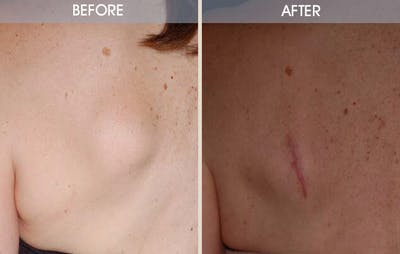 Lipoma Removal Gallery - Patient 2207392 - Image 2