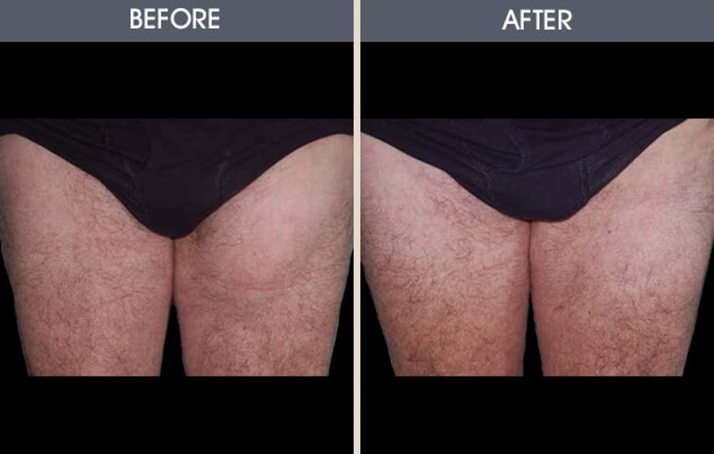 Before and After of patient's legs.