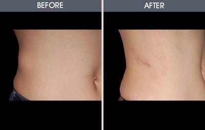 Before and After of side of patient's stomach