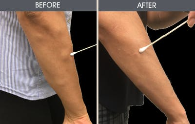 Lipoma Removal Gallery - Patient 2207524 - Image 2