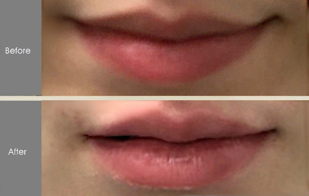 Fillers Gallery - Patient 2207491 - Image 2