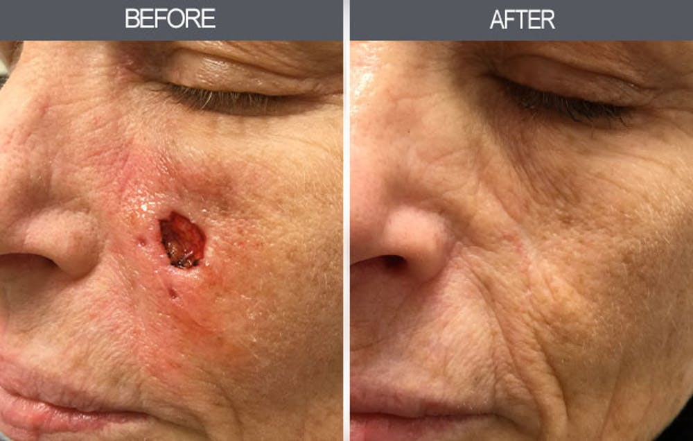 Skin Cancer Reconstruction Gallery - Patient 4446279 - Image 1