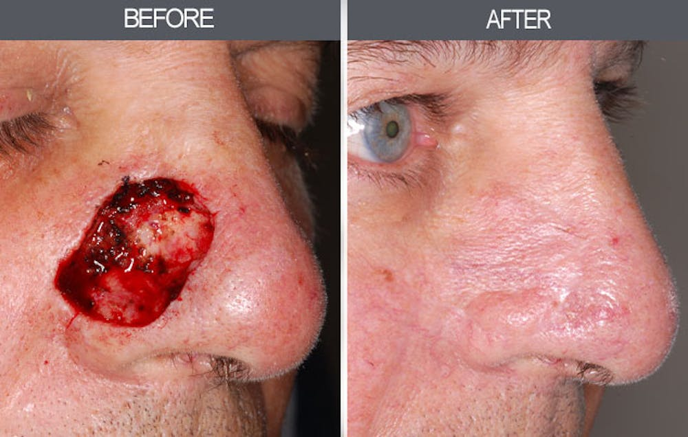 Skin Cancer Reconstruction Gallery - Patient 4446281 - Image 1