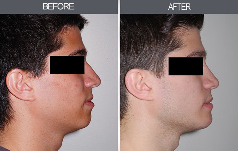 Rhinoplasty Gallery - Patient 4447203 - Image 1