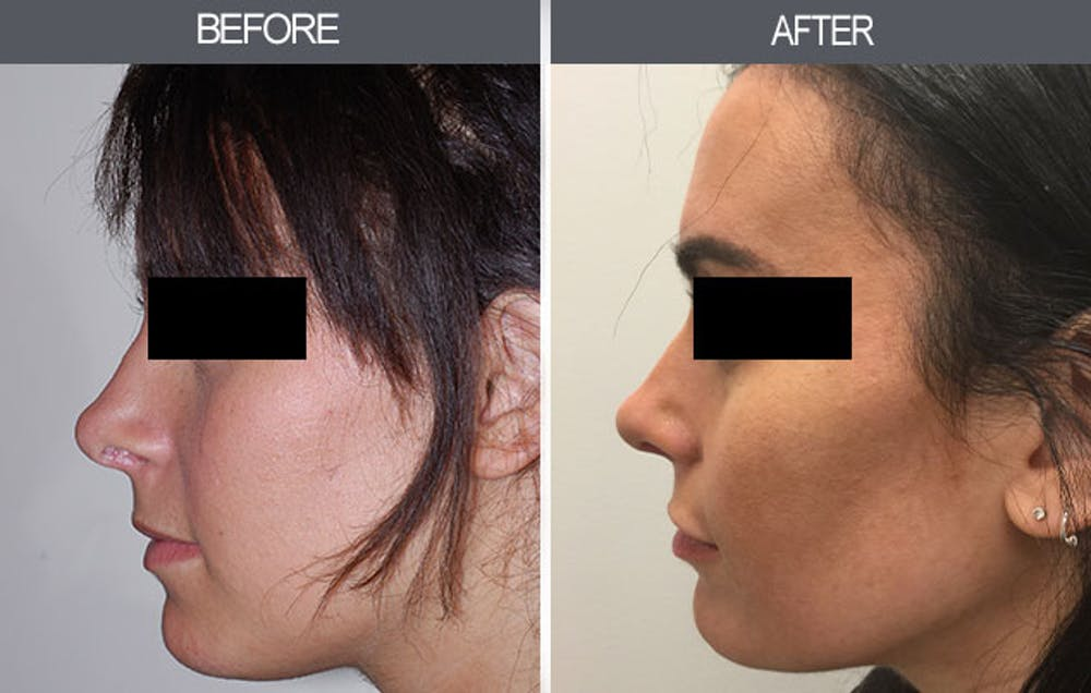 Rhinoplasty Gallery - Patient 4447205 - Image 1
