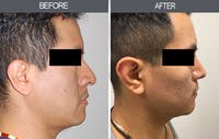 Rhinoplasty Gallery - Patient 4447206 - Image 1
