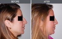 Rhinoplasty Gallery - Patient 4447207 - Image 1