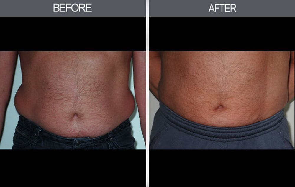 Liposuction Gallery - Patient 4448022 - Image 2