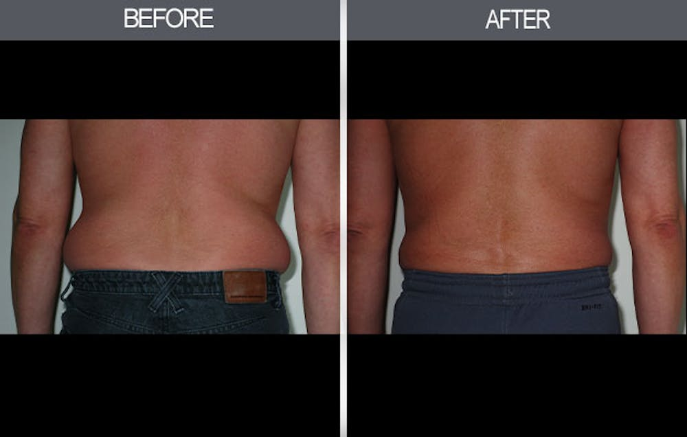 Liposuction Gallery - Patient 4448022 - Image 3