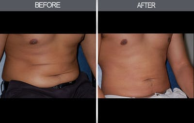 Liposuction Gallery - Patient 4448023 - Image 2