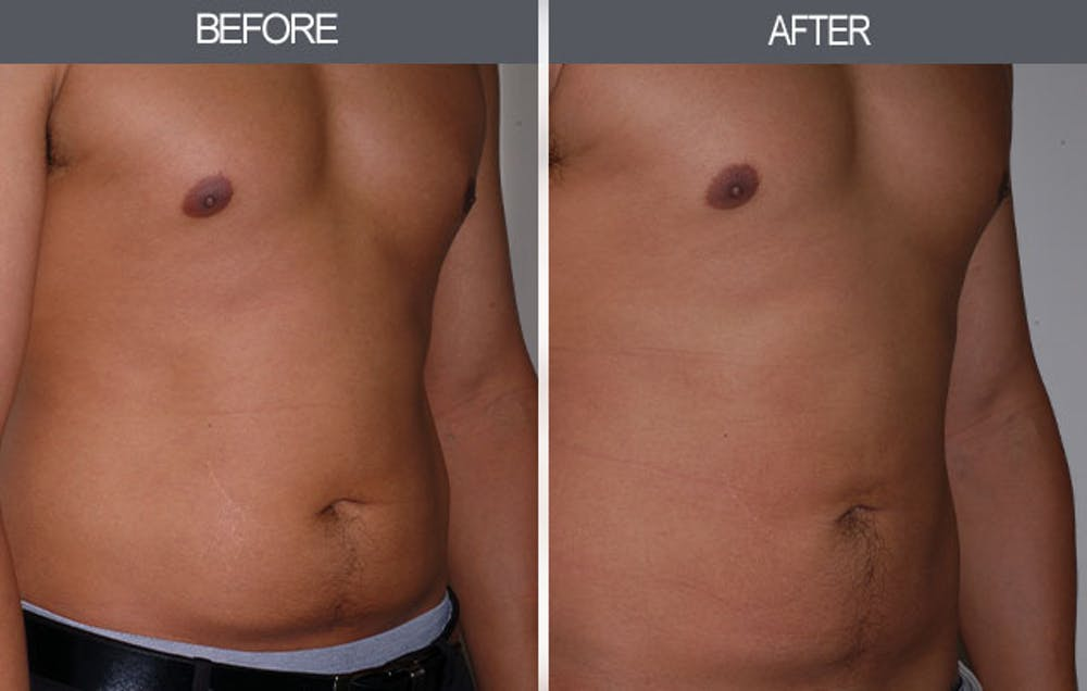 Liposuction Gallery - Patient 4448023 - Image 3