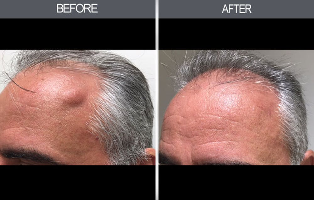 Lipoma Removal Gallery - Patient 4448356 - Image 1