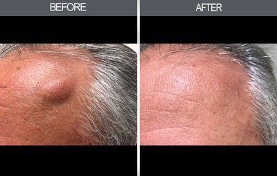 Lipoma Removal Gallery - Patient 4448356 - Image 2