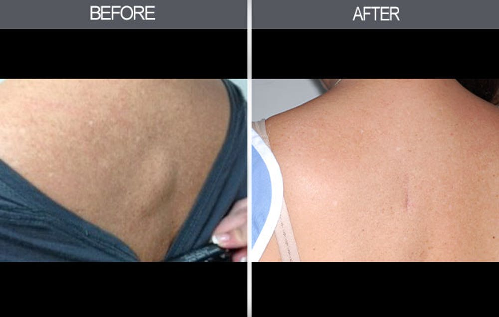 Lipoma Removal Gallery - Patient 4448358 - Image 1