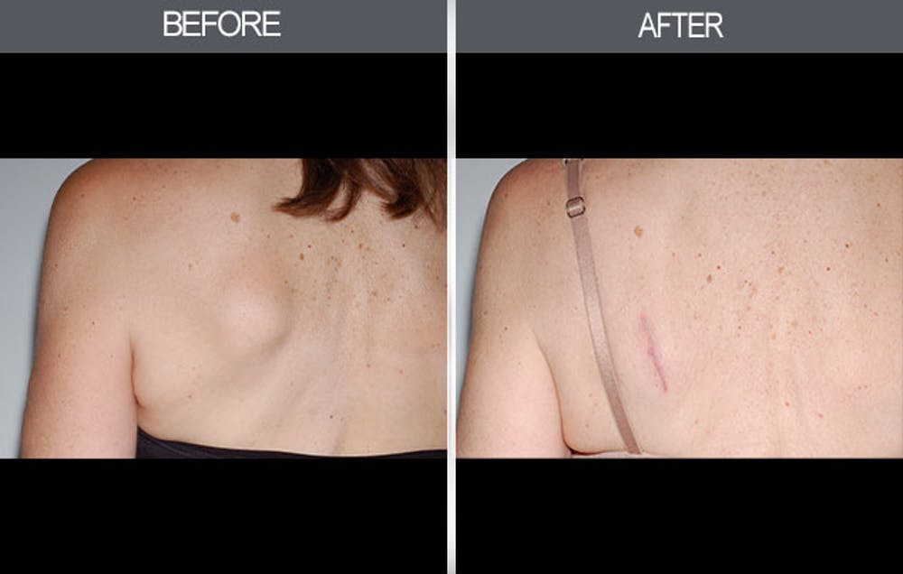 Lipoma Removal Gallery - Patient 4448359 - Image 1