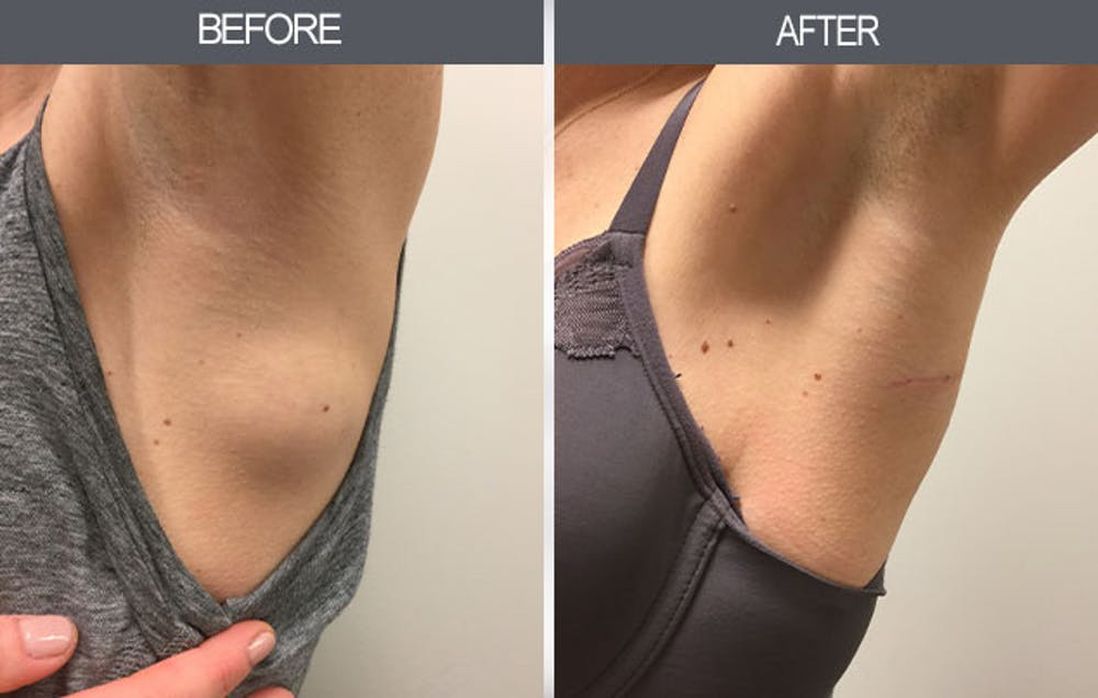 Lipoma Removal Gallery - Patient 4448360 - Image 2