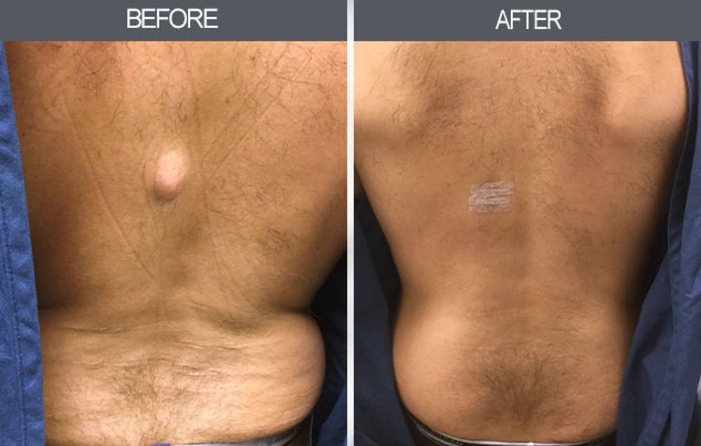 Lipoma Removal Gallery - Patient 4448465 - Image 1