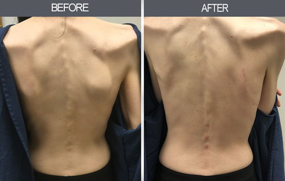 Lipoma Removal Gallery - Patient 4448466 - Image 1