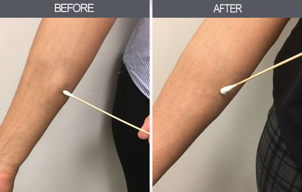 Lipoma Removal Gallery - Patient 4448467 - Image 1