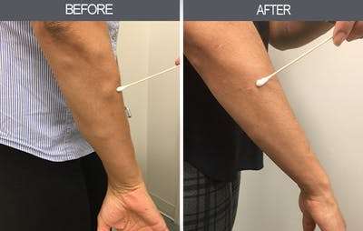 Lipoma Removal Gallery - Patient 4448467 - Image 2