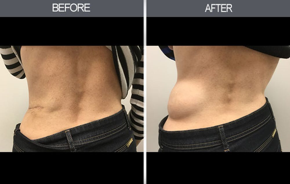 Lipoma Removal Gallery - Patient 4448468 - Image 1